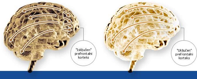 Razvoj celog mozga